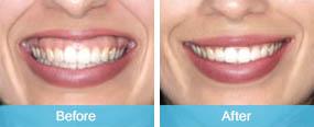 gummy-smile takapuna dentist